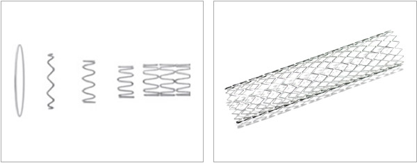 Fig. 1(a) Wire welded stent construction. Fig 1(b) Example of wire welded stent.