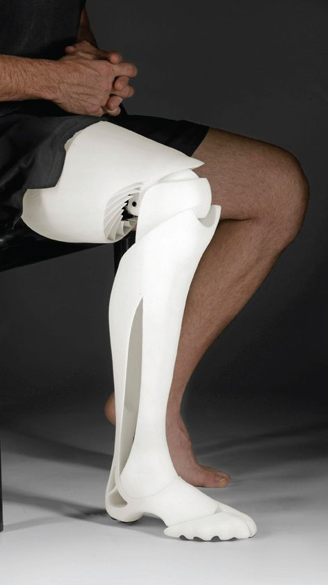 An example of a 3D printed leg.