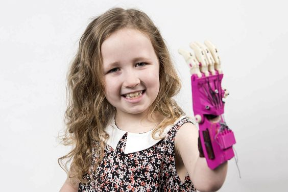 3D printing is widely used in the health industry, such as with this prosthetic hand